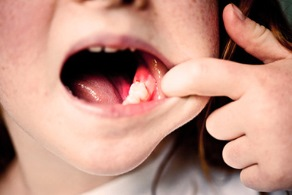 Child holding mouth open with one finger to reveal bloody space where tooth used to be.